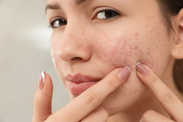 Let's see, What an expert cosmetologists says about acne?