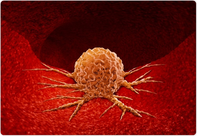 Some effective Remedies To Treat Tumor Naturally